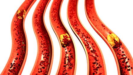 Arteria obstruida con plaquetas y placa de colesterol, concepto de riesgo para la salud para la obesidad o dieta y problemas de nutrición Foto de archivo
