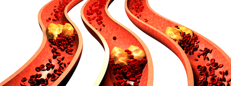 Clogged Artery with platelets and cholesterol plaque, concept for health risk for obesity or dieting and nutrition problems Stock Photo