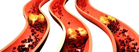 Verstopfte Arterie mit Blutplättchen und Cholesterin Plaque, Konzept für Gesundheitsrisiko für Fettleibigkeit oder Diät-und Ernährungsprobleme Standard-Bild - 75665971