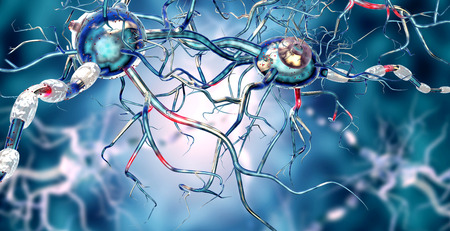 Damaged nerve cells, concept for neurodegenerative and neurological disease, tumors, brain surgery. Stock Photo