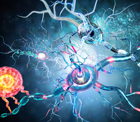 tumors: Damaged nerve cells, concept for neurodegenerative and neurological disease, tumors, brain surgery. Stock Photo