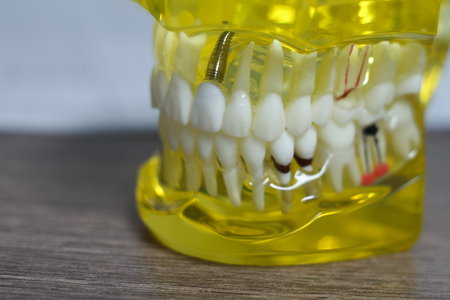 The dental tooth dentistry student learning teaching model showing teeth, roots, gums, gum disease, tooth decay and plaque.