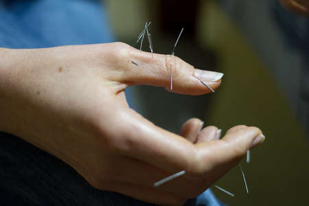 Close-up of female hand with acupuncture needles, alternative treatments, selective focus Reklamní fotografie