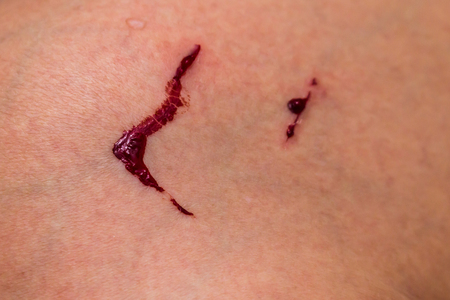 gash: Bleeding wound in the leg Stock Photo