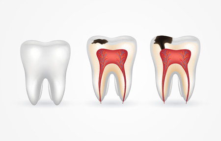 Tooth caries and healthy tooth. Superficial caries; deep caries; enamel and dentin decay; periodontitis. 3d realistic tooth inside and out. Vector Illustration