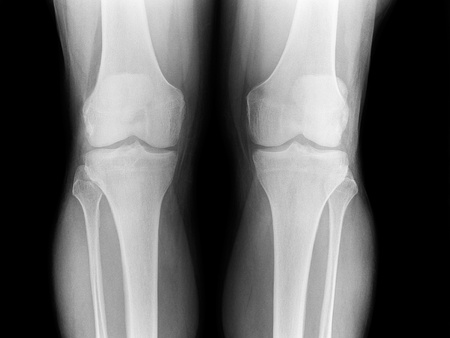 X-ray of the knee elderly man, front view Stock Photo