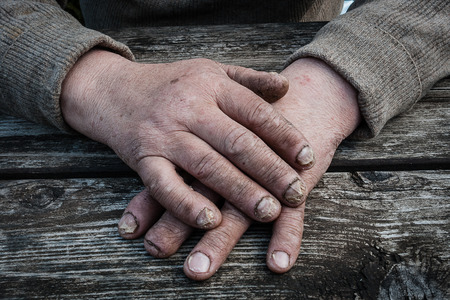 itraconazole: Fungus Infection on Nails Hand elderly man
