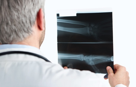 Doctor Checking A Wrist X Ray Isolated On White photo