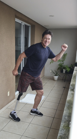 Shorts man chess showing his prosthesis happy life