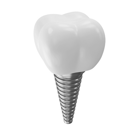 dental impression: Tooth Implant isolated on white background