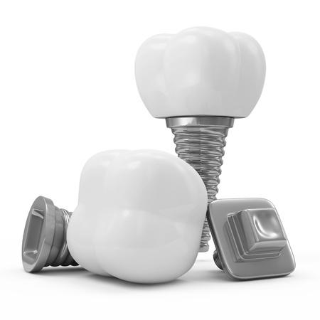 prothese: Zahnimplantate auf wei�em Hintergrund