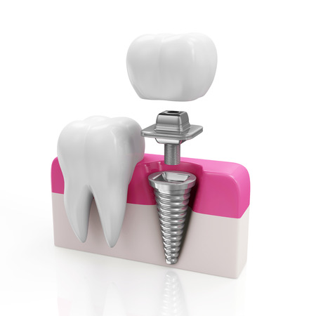 歯科の概念。健康歯とインプラントの白い背景で隔離 写真素材