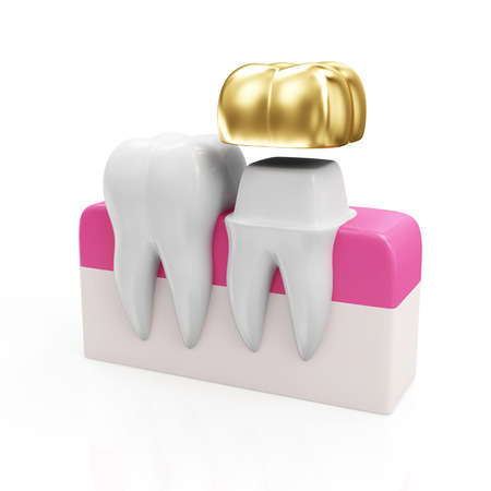Dentistry Concept. Health Tooth and Teeth with Golden Dental Crown isolated on white background