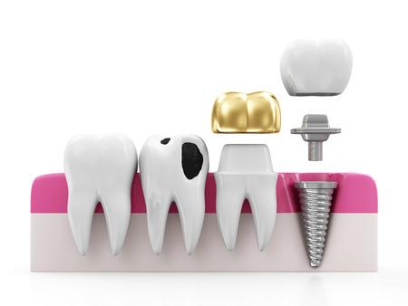 歯科のコンセプトです。健康歯、白い背景で隔離のインプラント、黄金の歯冠齲蝕と歯