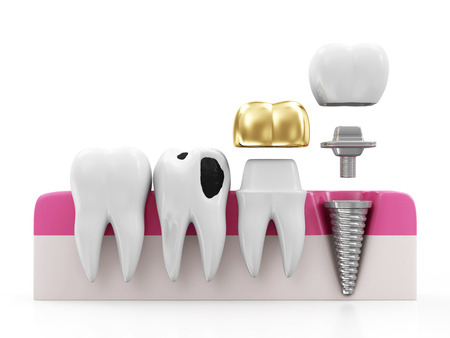 restoration: Dentistry Concept. Health Tooth, Teeth with Caries, Golden Dental Crown and Implant isolated on white background Stock Photo