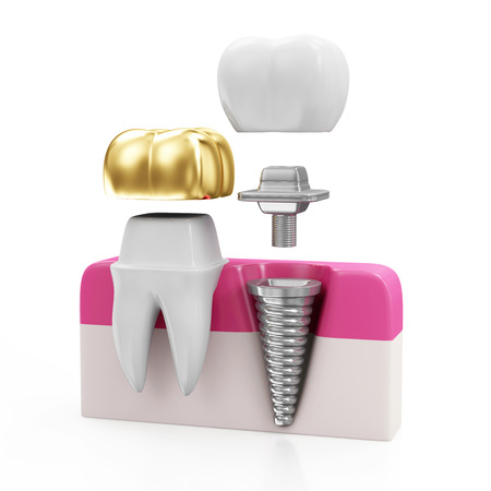 Dentistry Concept. Tooth with Golden Dental Crown and Dental implant isolated on white background photo