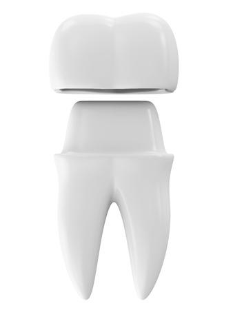 Zahnkrone auf einem Zahn isoliert auf weißem Hintergrund Standard-Bild