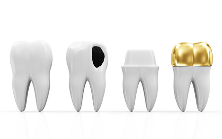 Helath Tooth, Teeth with Caries and Golden Dental Crown isolated on white background photo