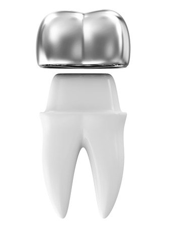 Silver Dental Crown on a Tooth isolated on white background photo
