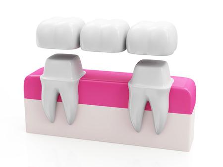laboratorio dental: Dental Concept Bridge. Corona dental en un diente aislado en fondo blanco
