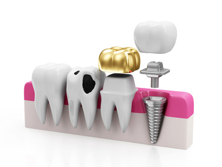 Dentistry Concept. Health Tooth, Teeth with Caries, Golden Dental Crown and Implant isolated on white background Stockfoto