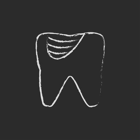 diente caries: La caries dental dibujado a mano con tiza en un icono blanco vector de pizarra aislado en un fondo negro.