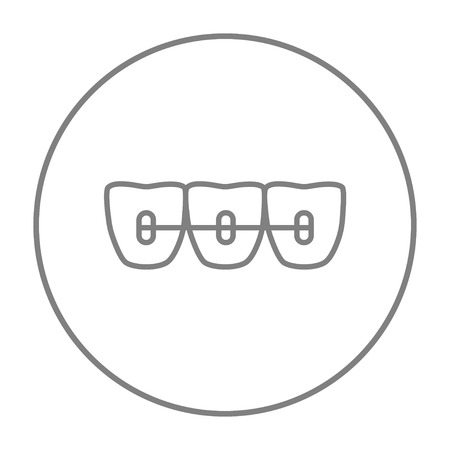 orthodontic: Orthodontic braces line icon for web, mobile and infographics. Vector grey thin line icon in the circle isolated on white background. Illustration