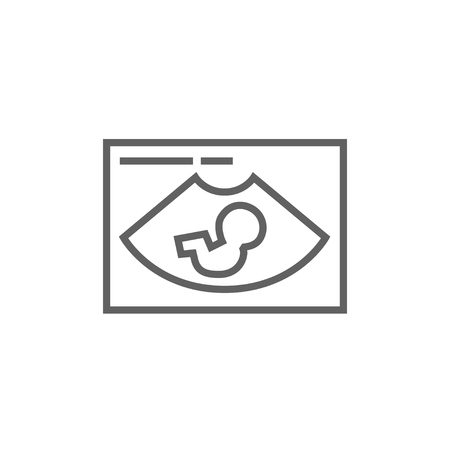 fetal: Fetal ultrasound thick line icon with pointed corners and edges for web, mobile and infographics. Vector isolated icon. Illustration