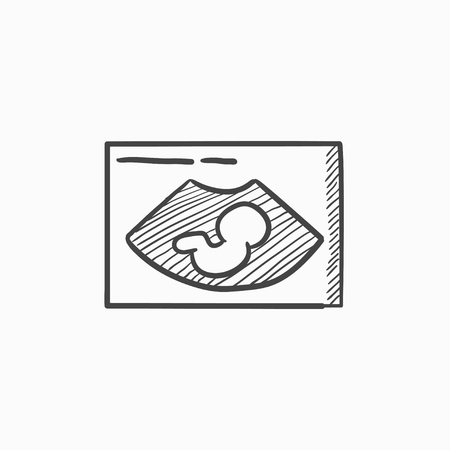 fetal: Fetal ultrasound vector sketch icon isolated on background. Hand drawn Fetal ultrasound icon. Fetal ultrasound sketch icon for infographic, website or app. Illustration