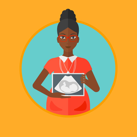 An african-american young pregnant woman showing ultrasound image. Smiling pregnant woman holding ultrasound scan on her belly. Vector flat design illustration in the circle isolated on background. Illustration