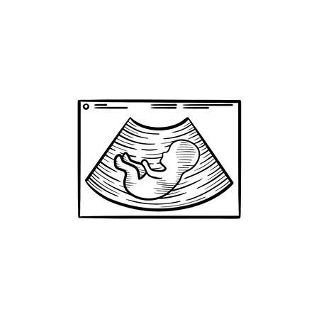 Fetal ultrasound hand drawn outline doodle icon. Pregnancy sonogram of a baby in womb vector sketch illustration for print, web, mobile and infographics isolated on white background. Illustration