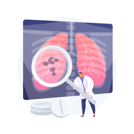 Lower respiratory infections abstract concept vector illustration. 向量圖像