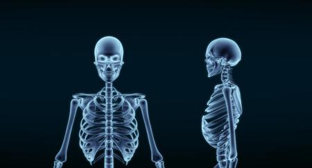 Human Skeleton Anatomy X-ray 3D rendering Foto de archivo - 111394454