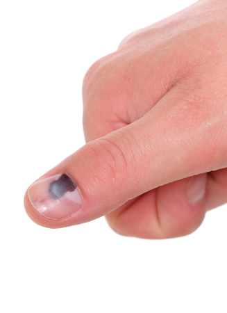 contusion: Human finger with black bruised nail, subungual hematoma  Isolated on white background
