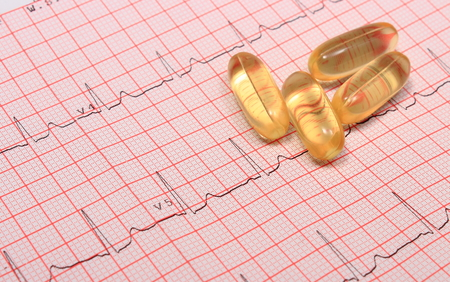 rhythm: Electrocardiogram graph and pills, ekg heart rhythm, medicine concept Stock Photo