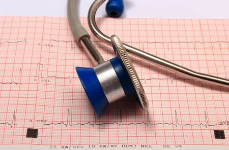 rhythm: Medical stethoscope and electrocardiogram graph ekg heart rhythm, medicine concept Stock Photo