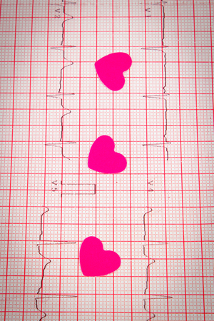 ecg heart: Hearts of paper lying on electrocardiogram graph, ecg heart rhythm, medicine and healthcare concept Stock Photo