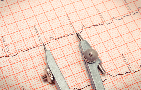 Electrocardiogram graph ekg heart rhythm with calipers, health care and medicine concept Stock Photo - 106300699