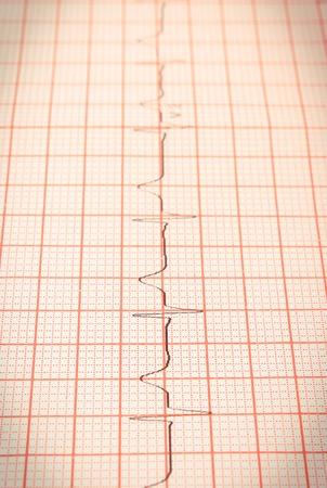 Electrocardiogram graph ekg heart rhythm, concept of health care and medicine Zdjęcie Seryjne