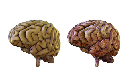 Human brain comparison healthy and inflamed, damaged, 3d render