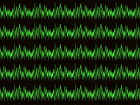 Several horizontal green waveform on the oscilloscope screen with the checkered marking Stock Photo