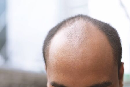 Close up young man concerned with serious hair loss. bald head thin and scalp and broken hair. concept healthcare. Leave space to write descriptive text. Glabrous