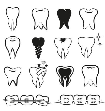 dientes sucios: Vector conjunto de dientes sobre fondo negro blanco