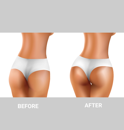 butt: before and after sexy buttocks exercise