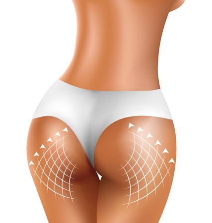buttock: Perfect sexy firm buttock of healthy women in white bikini