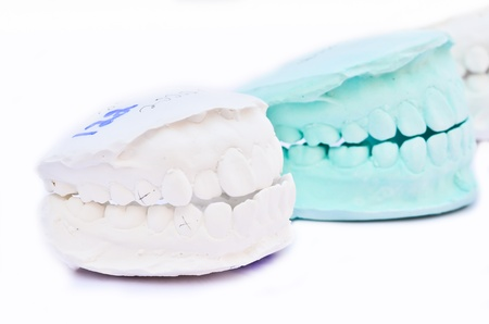 white teeth, model Stock Photo