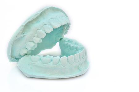 plaster mould: Dental casting gypsum model plaster cast stomatologic Stock Photo