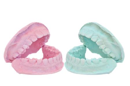plaster cast: Dental casting gypsum model plaster cast stomatologic on white background