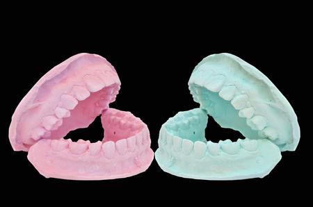 plaster mould: Dental casting gypsum model plaster cast stomatologic on black background
