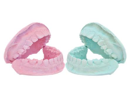 plaster mould: Dental casting gypsum model plaster cast stomatologic on white background